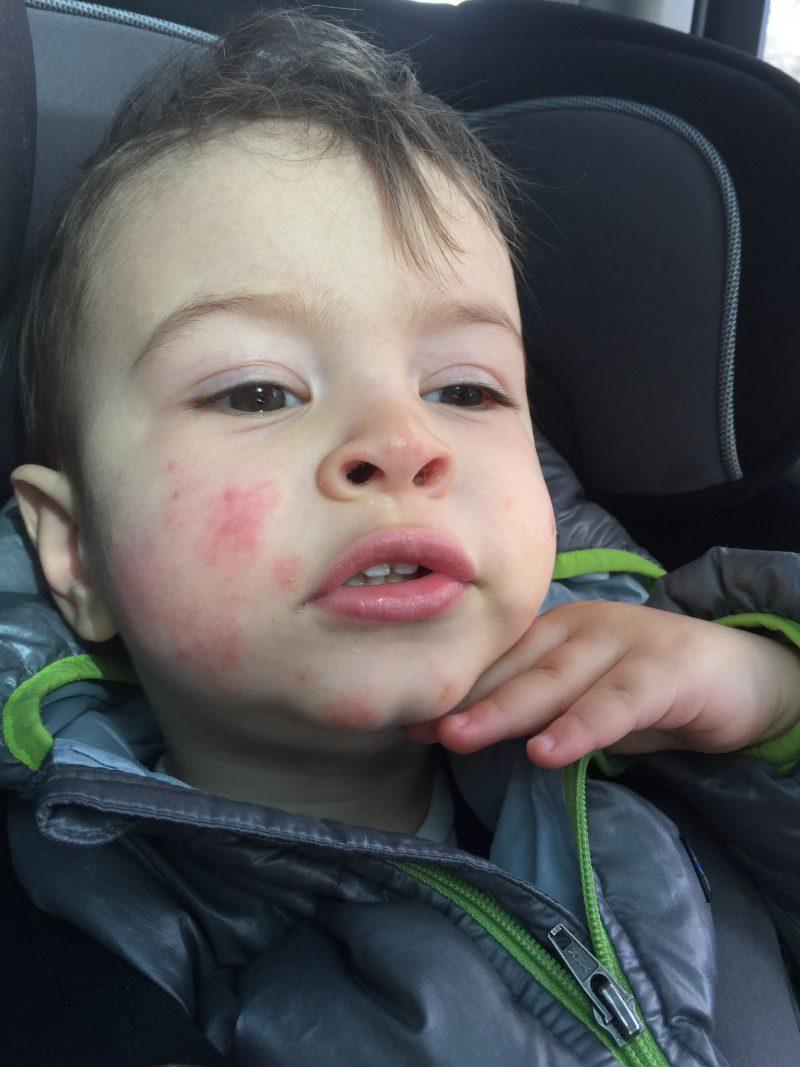 Wyatt eczema gimme the good stuff